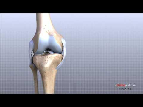 cum să restabiliți articulația degetelor după o accidentare