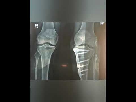 cum să tratezi artroza genunchiului cu ozokerită