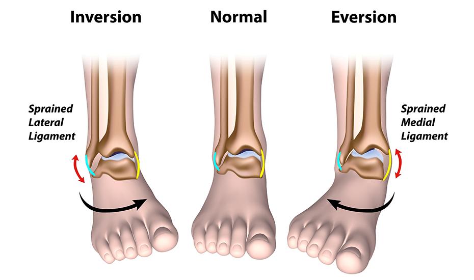 cum se tratează ruperea parțială a ligamentelor gleznei)