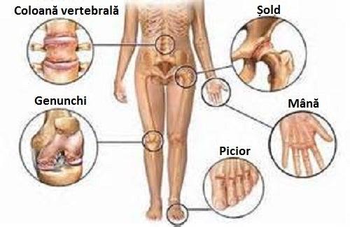 curățarea articulațiilor de durere în coloana vertebrală
