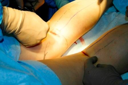 curbura piciorului în artroza articulației genunchiului)