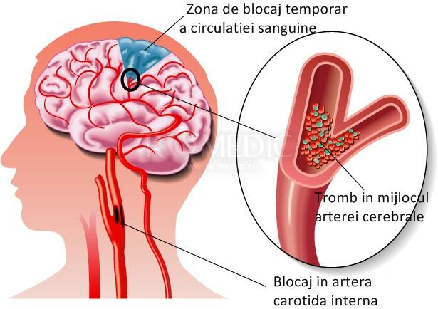 dureri articulare cu accident vascular cerebral ischemic)