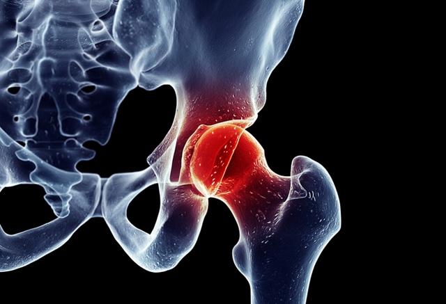 dureri de șold în poziție supină