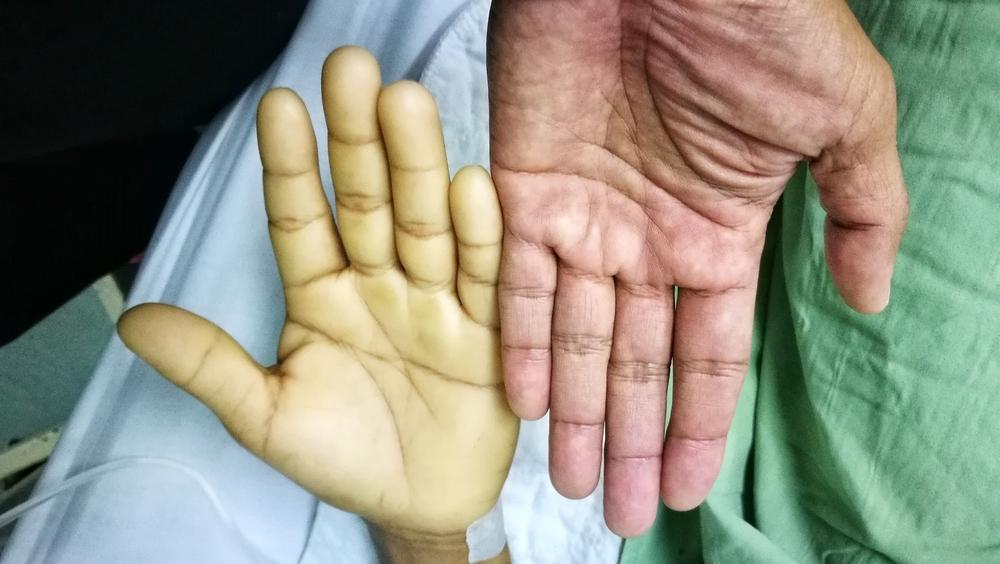 anemia cauzează boala articulară