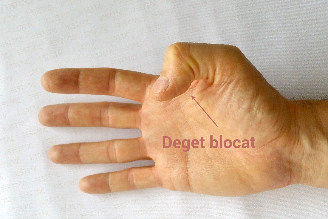 Degetul inelar în articulație doare