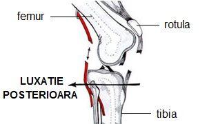 luxația tratamentului articulației genunchiului)