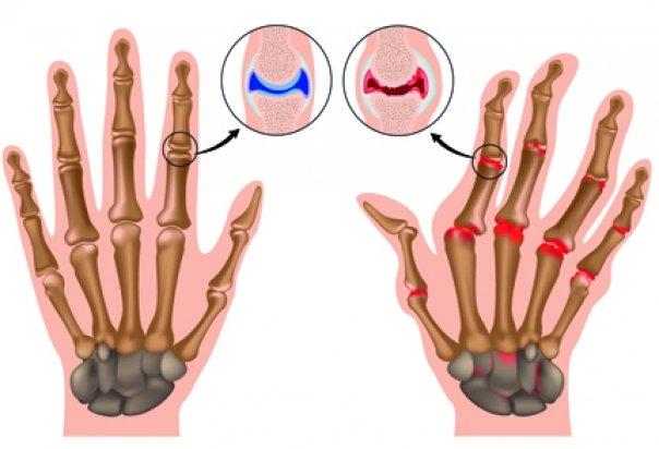 dureri articulare migratoare cu dureri articulare echinacee