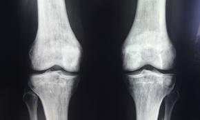 radiografia genunchiului în artroză)