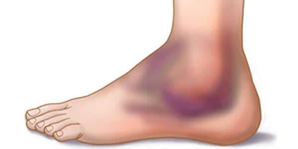 inflamația ligamentelor articulației cotului epicondilita articulației cotului unguent de salvare din articulații