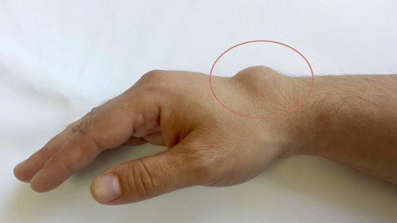 de ce doare articulația de pe degetul mic