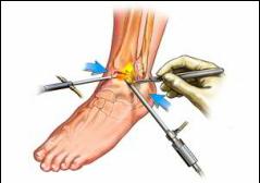 deformarea tratamentului artrozei gleznei