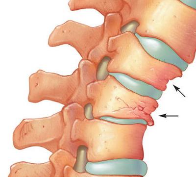 denumirea tratamentului articular și a coloanei vertebrale diferit)