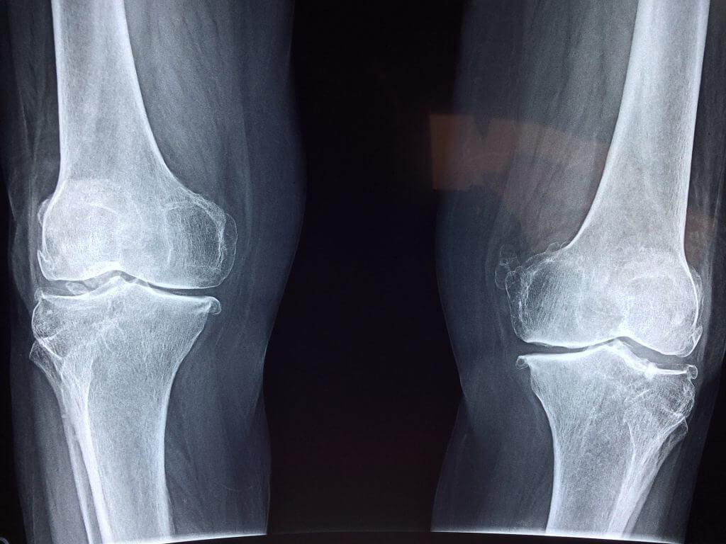 deteriorarea cartilajului la genunchi)