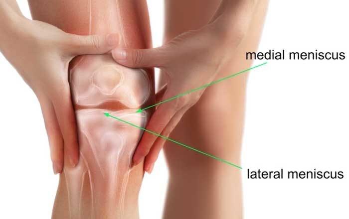 deteriorarea meniscului interior al articulației genunchiului drept)