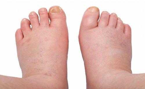 picioare umflate si rosii umflarea și durerea în tratamentul articulației gleznei