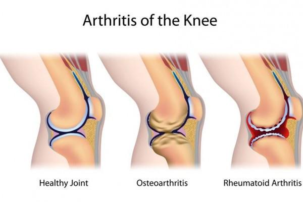 revărsare articulară cu artrită