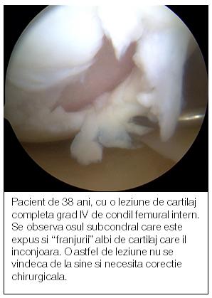 distrugerea cartilajului a tratamentului articulației genunchiului)