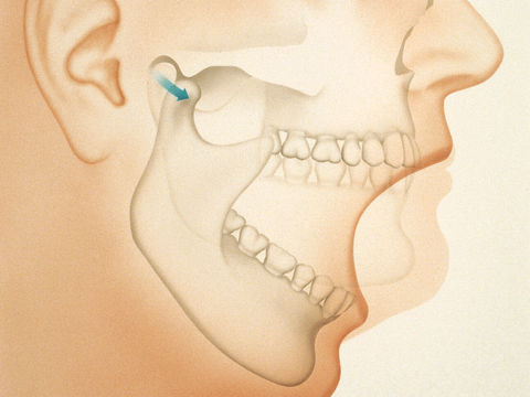 durere în articulația temporofacială