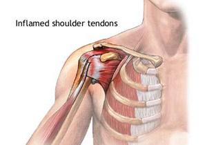 durere în articulația umărului și sub braț