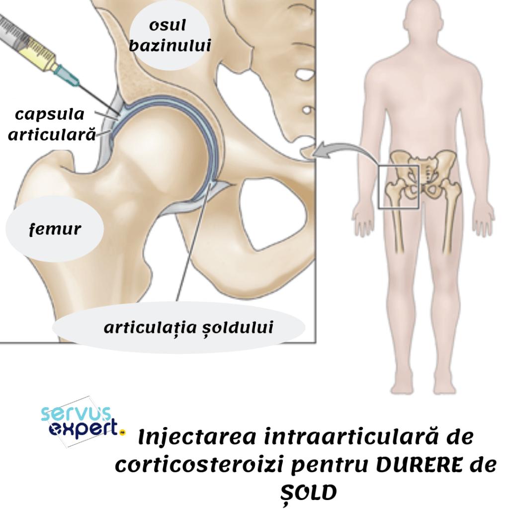 durere în oasele articulației șoldului