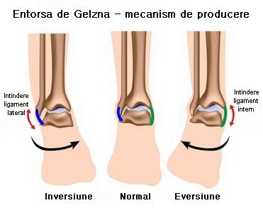 durere persistentă în articulația gleznei)
