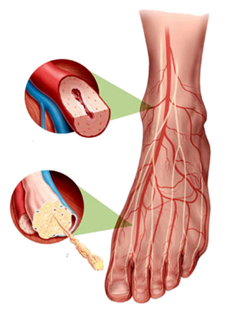 dureri articulare polineuropatie