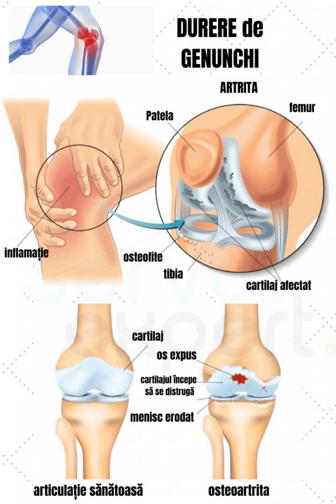 Am genunchi durere ascuțită în partea de jos și din stânga a genunchiului Dacă