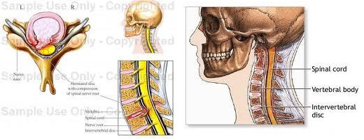 Artroza și hernia tratamentului vertebrei cervicale