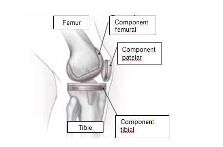 recuperare după chirurgia plastică a genunchiului)