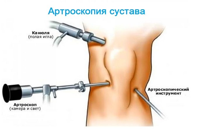 articulațiile și mușchii rănesc întregul corp)