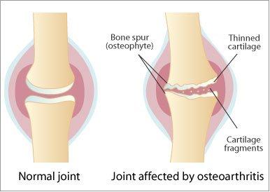 artroza articulației falangeale a piciorului