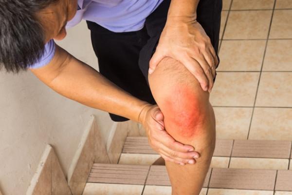 hiperemie umflarea durerii articulare a genunchiului