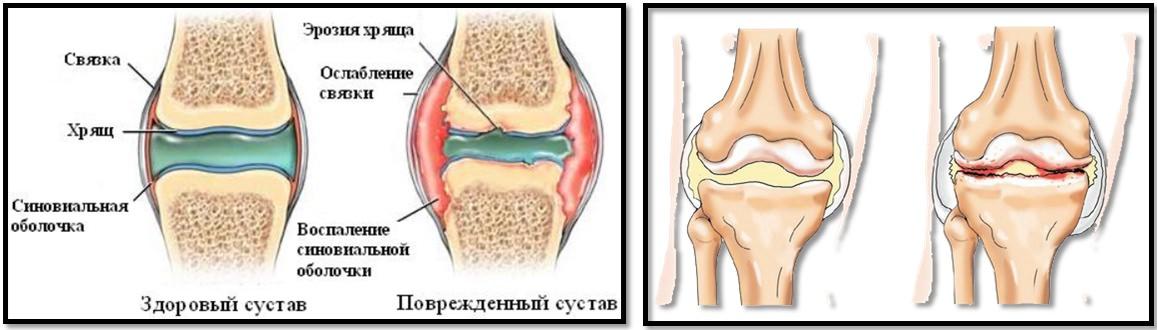 încălzirea cu artroza articulației umărului