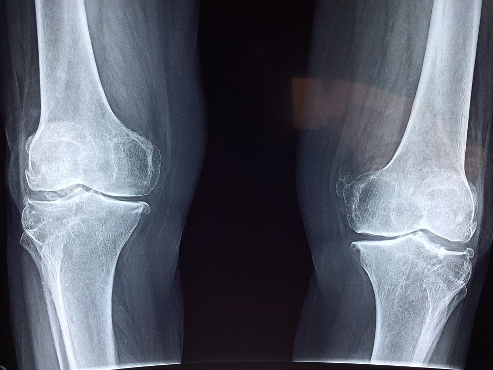 artrita virala a genunchiului metode pentru studiul bolilor genunchiului