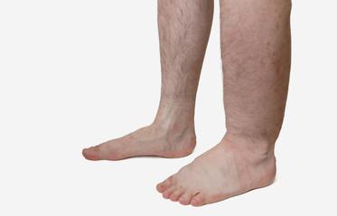 Edem de gleznă cu insuficiență renală cronică. Picioare umflate - cauze, prevenire si tratament