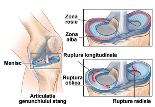 umflarea articulației genunchiului cu o ruptură de menisc
