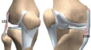 entorsa a ligamentului lateral intern al genunchiului)