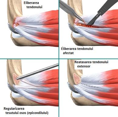 epicondilita laterală a cotului rece umflarea și durerea articulară tratează artrita