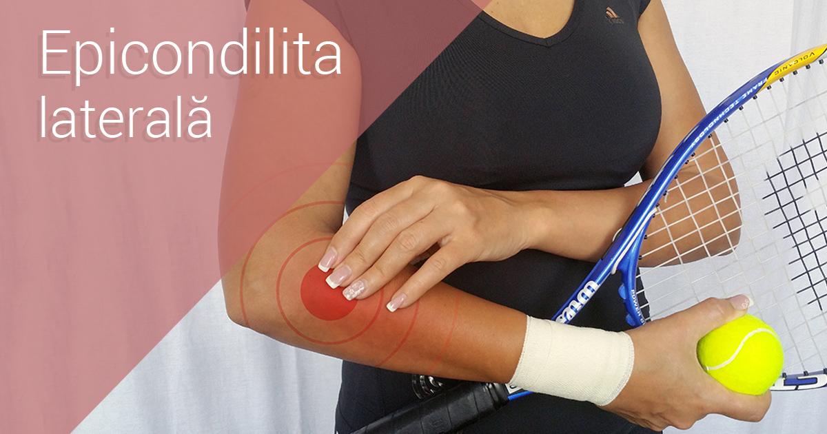 Epicondilita - cauze, simptome si tratament
