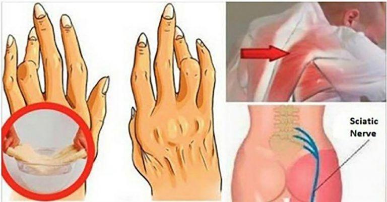 artrita decat tratamente)