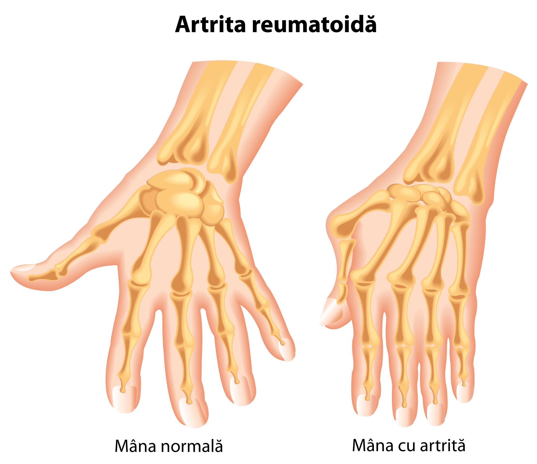 boala articulară a mâinii.