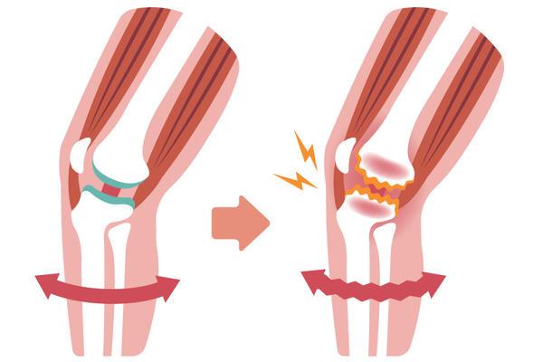 semne de deteriorare a meniscului intern al genunchiului