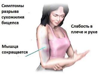 face clic pe articulația umărului după rănire)