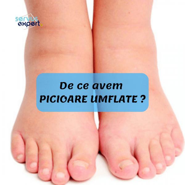 umflarea articulației pe picior cu durere)