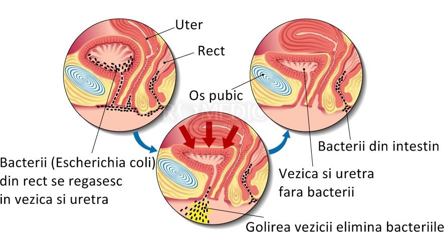 infecție cu simptome de durere articulară)