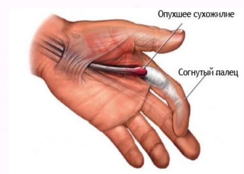 inflamația articulației pe degetul cauzelor