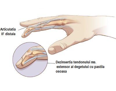 leziunea articulației degetului mijlociu articulațiile articulare doare ceea ce este