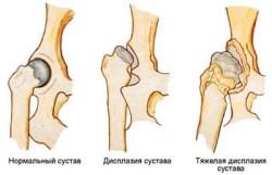 Leziuni ale ligamentelor