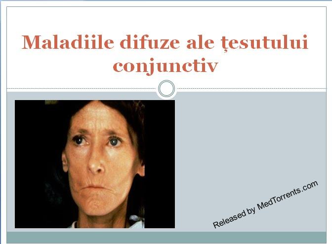 Lista bolilor difuzive ale țesutului conjunctiv.