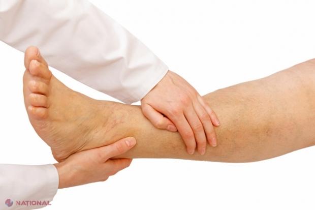 oboseala și durerea în articulațiile picioarelor provoacă